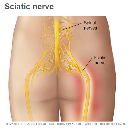Where are your sciatica symptoms coming from?
